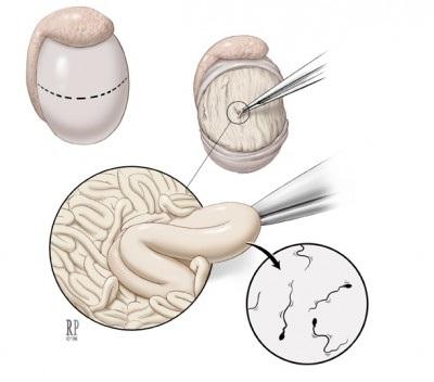 chem-lechit-nepodvizhnie-spermatozoidi